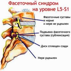 Фасеточный синдром. Лечение фасеточного синдрома в Киеве