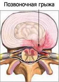 Лечение народным средством при заболевании поджелудочной железы