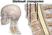 Шейный спондилез | Лечение шейного спондилеза Киев